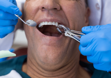 Wisdom Teeth removal and Tooth Extractions