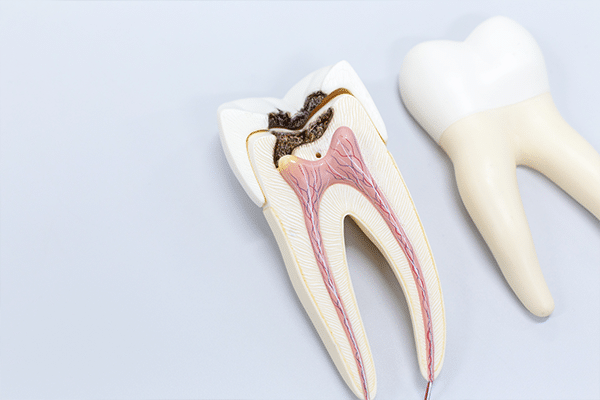 Root Canals and Endodontics